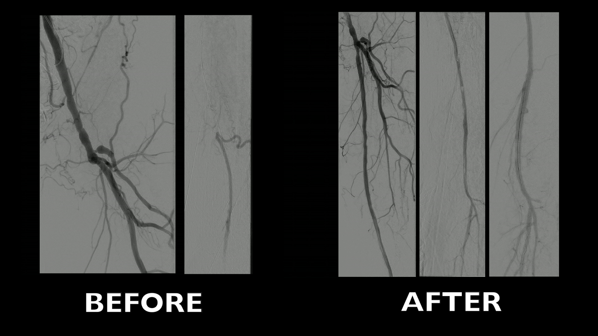 video vascular mimetic technology supera in challenging case 1 endovascular approach to tasc ii d lesions involving the popliteal artery challenging but worthwhile 20 min