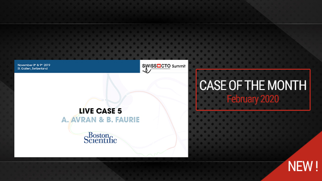 Live case: Challenges of PCI and DAPT in an elderly patient with ASA allergy