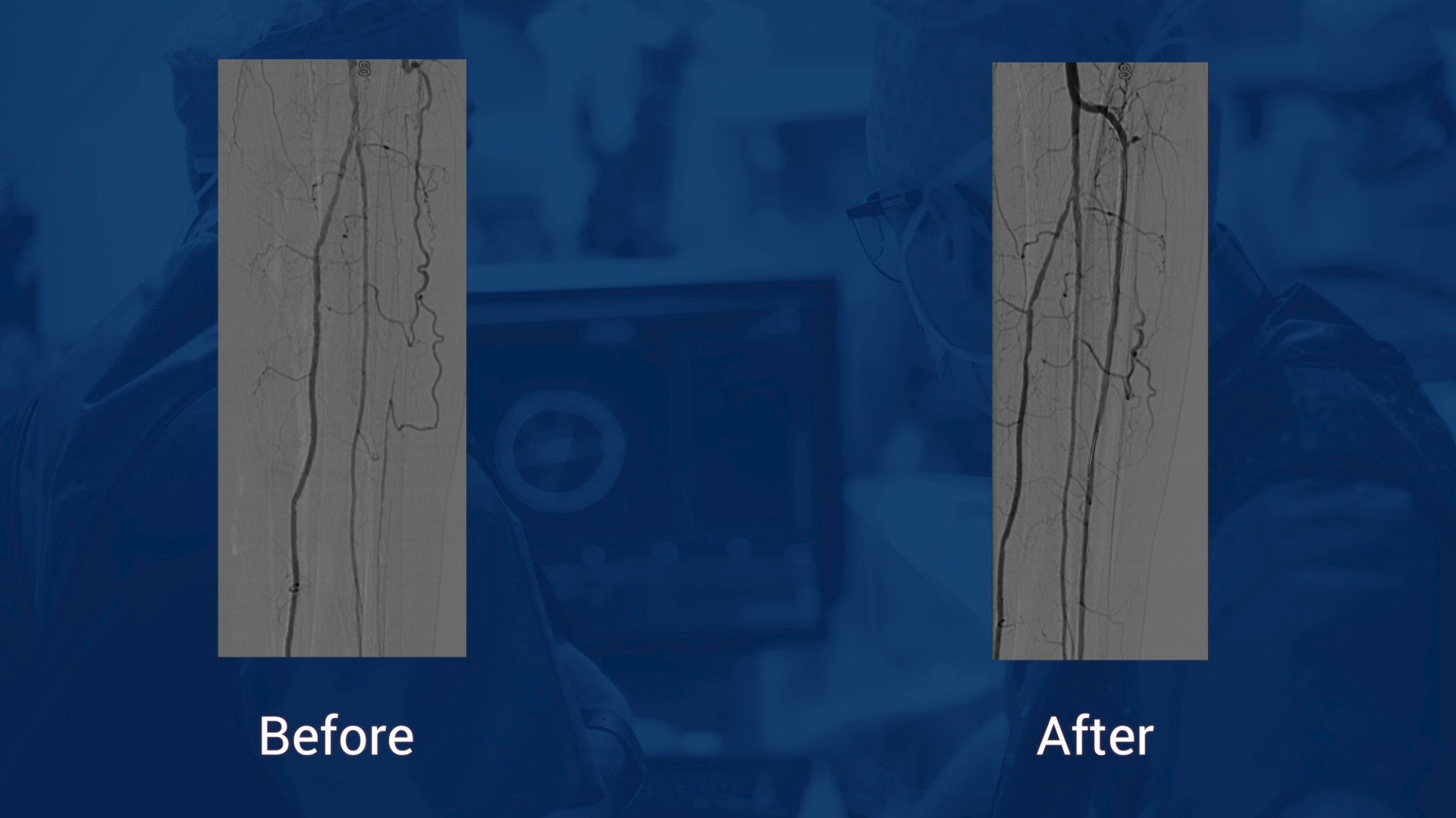 """TASC D SFA recanalization and definitive treatment with 035"""" Legflow DCB """"leaving nothing behind"""""""