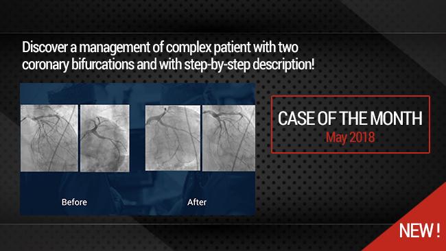 Simultaneous treatment of two coronary artery bifurcations