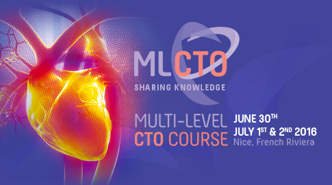 ML-CTO 2016 Live case 6