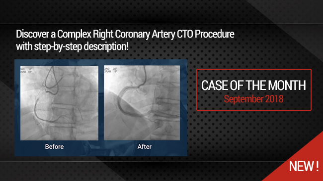 Complex Right Coronary Artery CTO Procedure: Step-by-Step antegrade dissection reentry technique