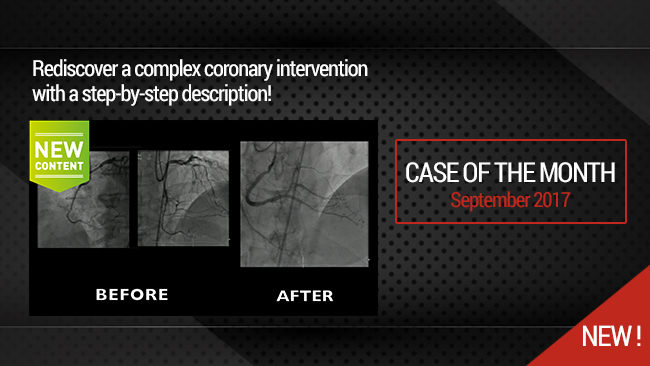 Very complex Mid RCA occlusion