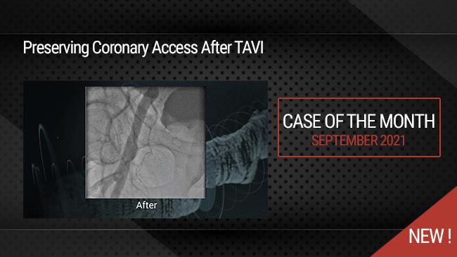 Preserving Coronary Access After TAVI