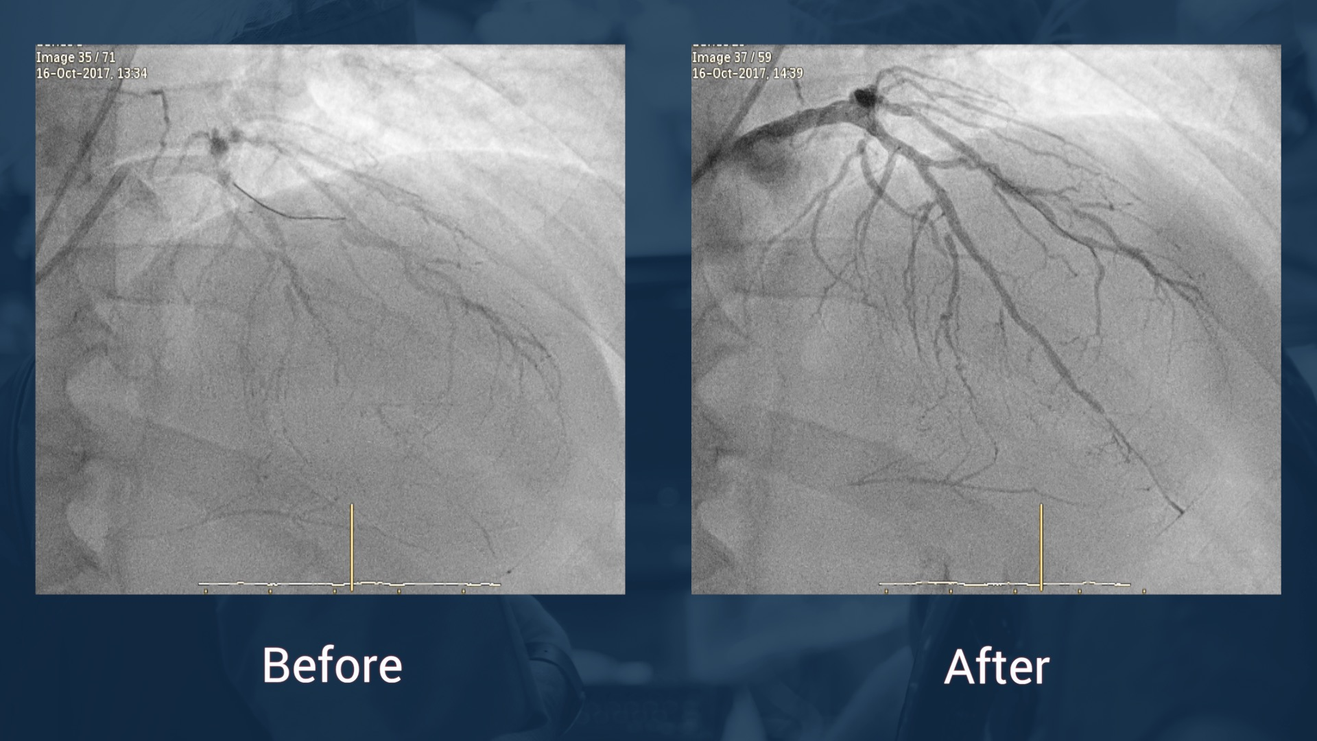 CTO PCI in LAD: strategies when the microcatheter cannot cross the lesion after antegrade wiring