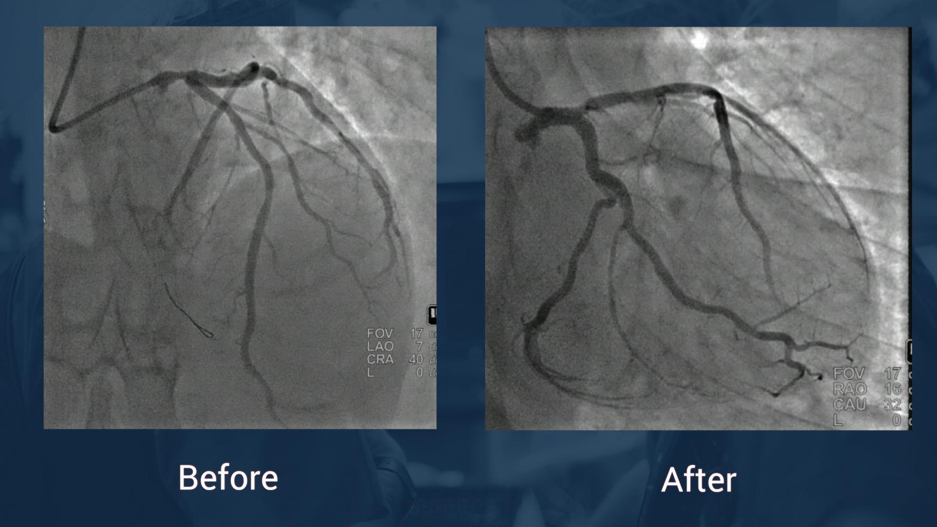Angioplastie du tronc commun: un point de vue endovasculaire
