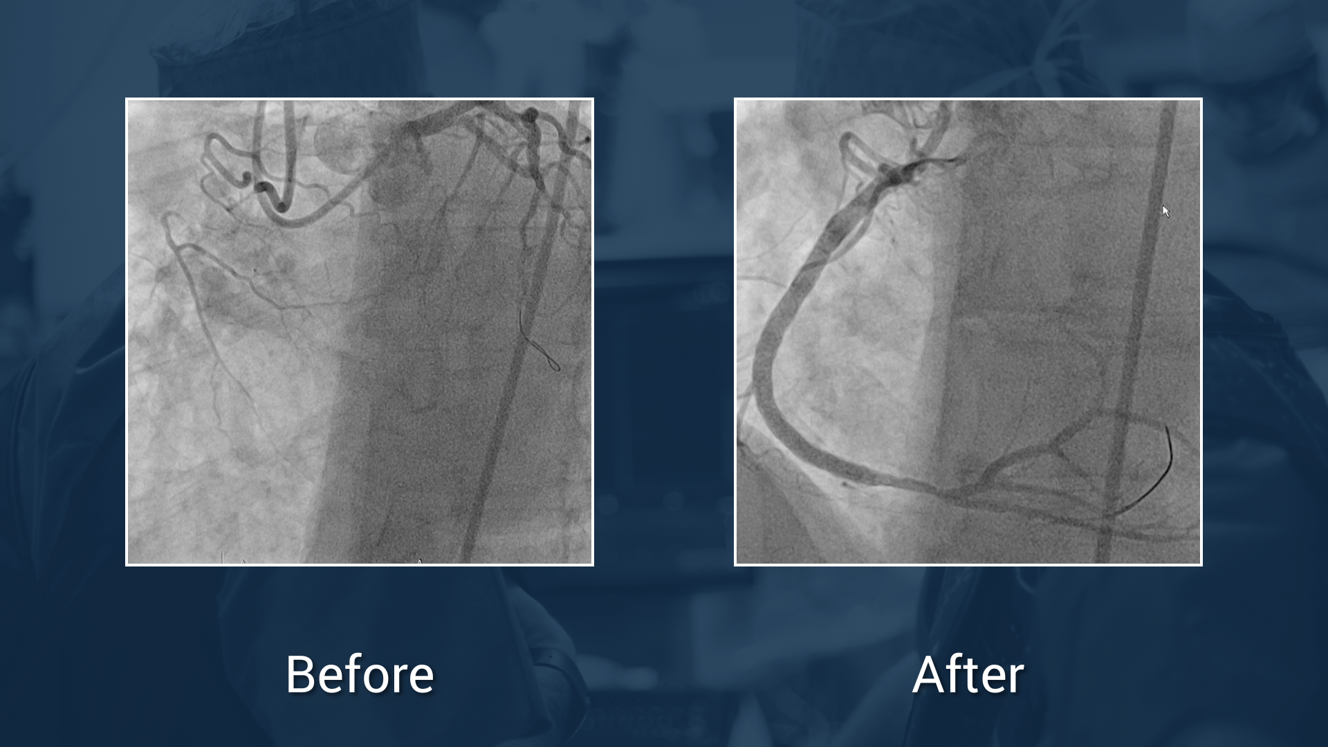 Long complex post-CABG RCA CTO with retrograde epicardial approach