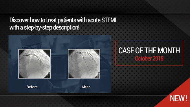 "Complex Acute Anterior STEMI with ""no Reflow phenomenon"" management"