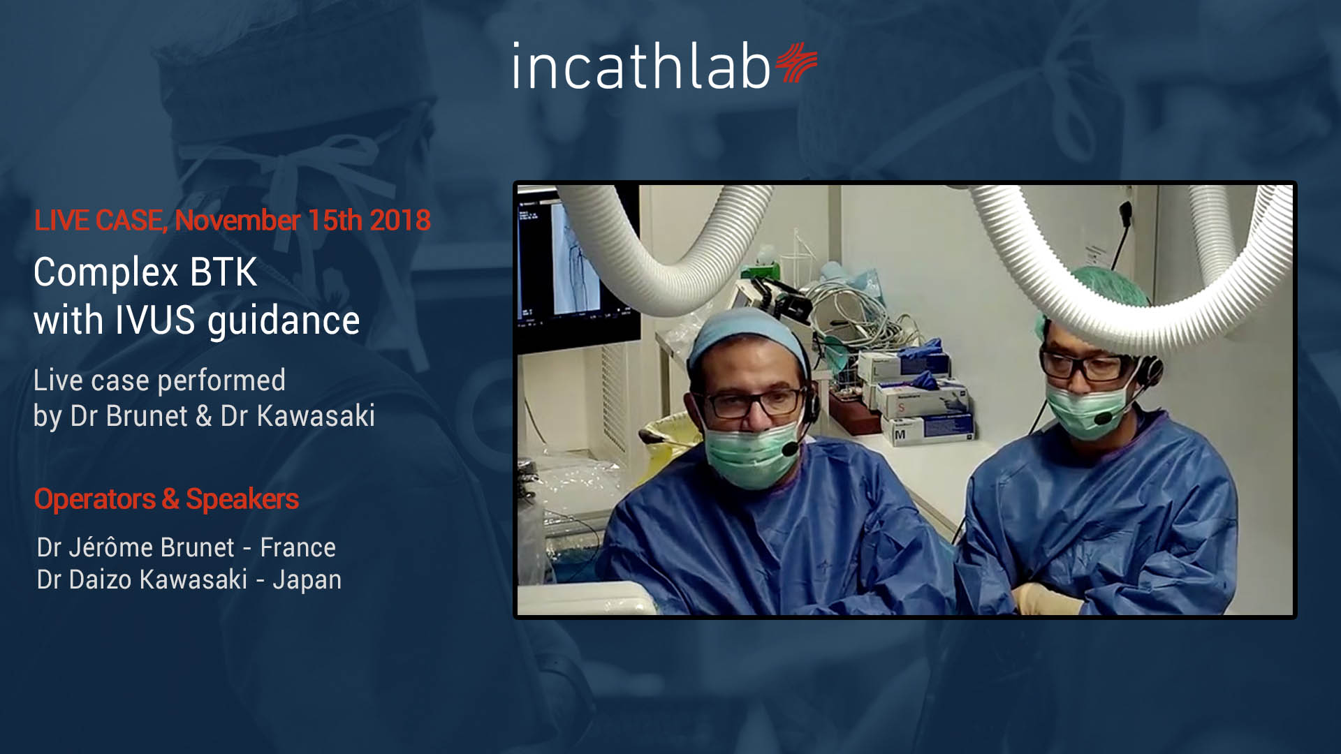 Live Case: Long SFA lesion treated according to ALARAS- and REACT strategies