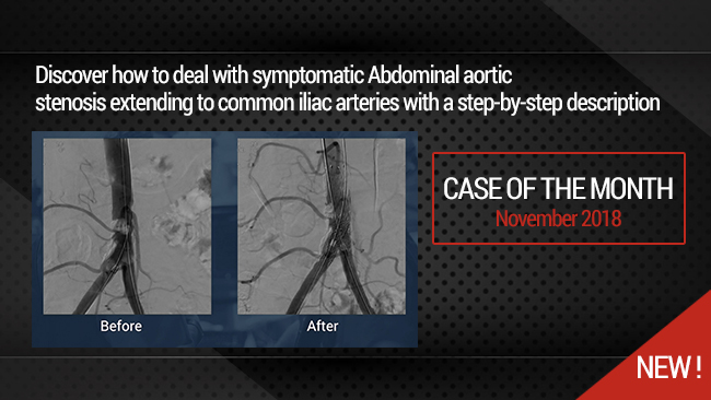 Complex Aorto-iliac lesion: How to deal with symptomatic Abdominal Aortic calcified stenosis extending to common iliac arteries