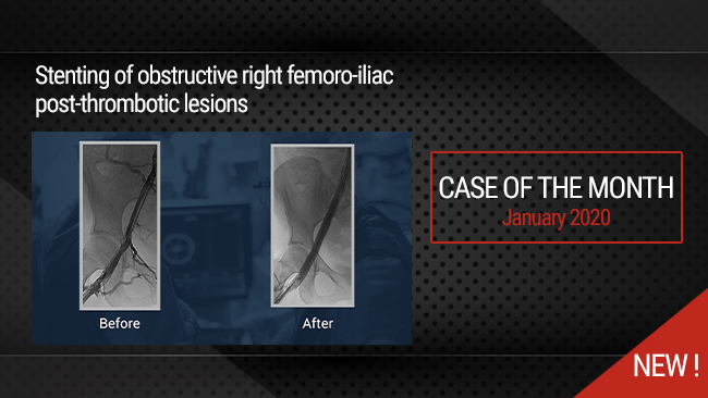 Stenting of obstructive right femoro-iliac post-thrombotic lesions
